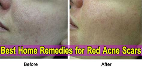 acne after ovary removal picture 17