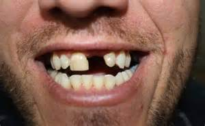 with teeth picture 13