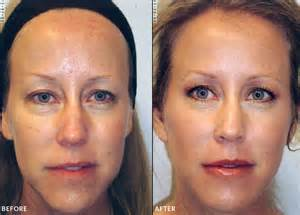 collagen hair treatment picture 14