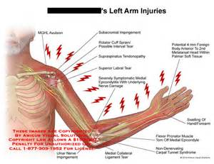 bicep muscle pain picture 18