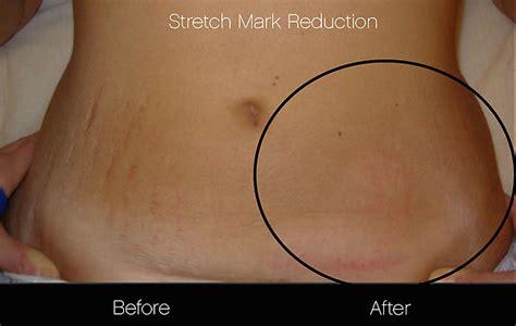 shoulder stretch marks picture 3