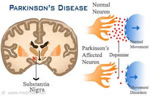 nathan zakheim disease picture 5