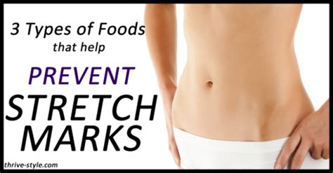 watsons stretch mark removal picture 11