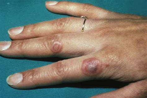 chronic liver disease skin problem name picture 2
