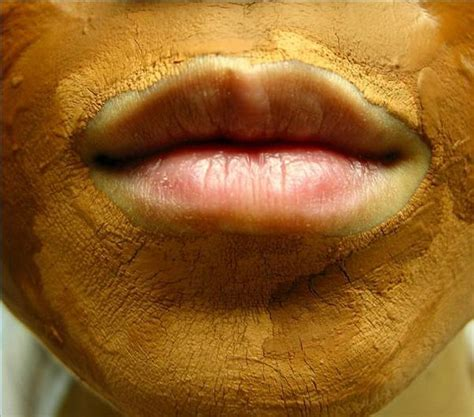 beautytips.ayurvediccure/skin-care/face-masks.ht picture 2