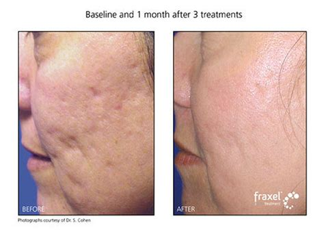 skin care for acne scars picture 1