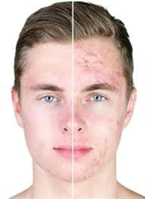 acne support picture 14