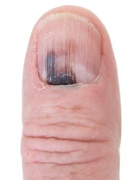 fingernail fungus picture 2