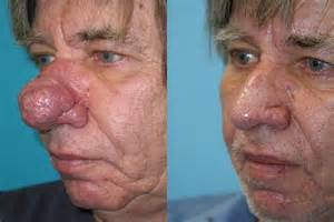 http acne surgery.com picture 3