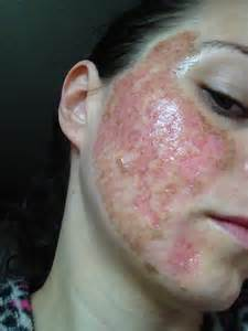 co2 acne picture 3