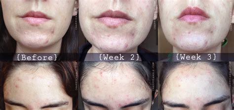 aspirin for acne picture 1