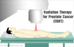 Radiation treatment for prostate cancer picture 3