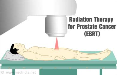 Type of treatment prostate cancer in stroke victim picture 3