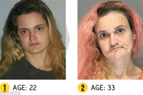 meth and drugs and physical and aging picture 4