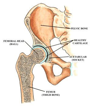 femoral joint pain picture 13