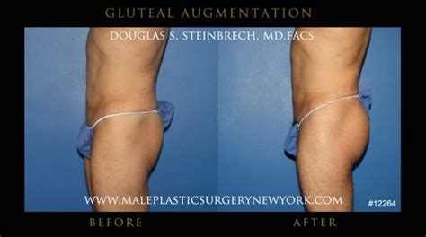 new york, penile fat injections by female dr. picture 10