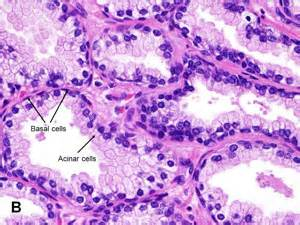 Prostate hypertrophy picture 2