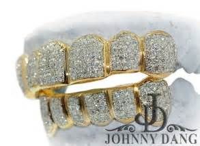 diamond teeth grills picture 6