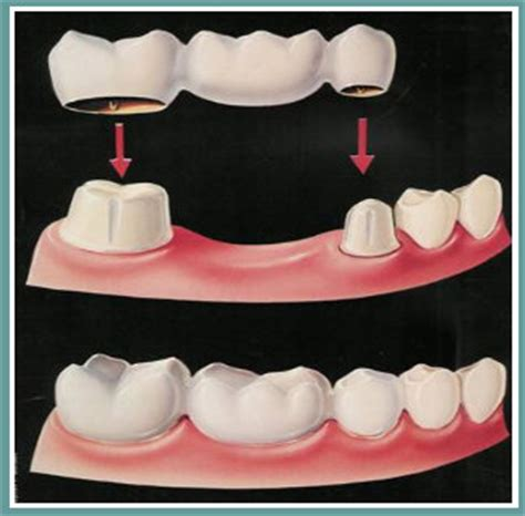 los angeles teeth whitening picture 15