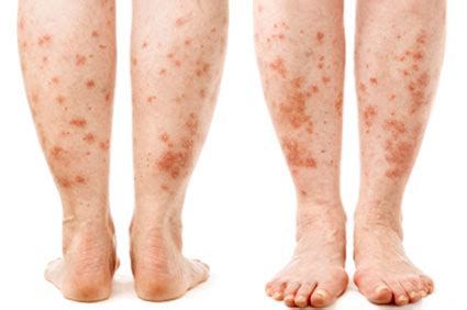 disease that takes away pigment in skin picture 15