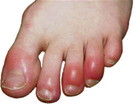 feet burning swelling hands swelling lexapro picture 8