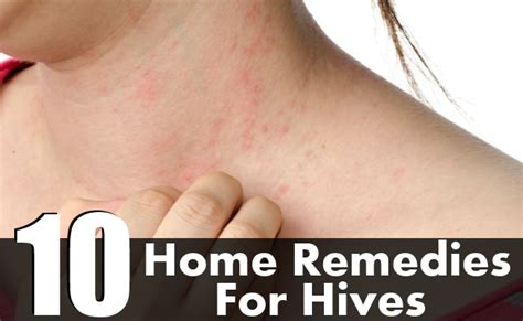 remedies for hives picture 5