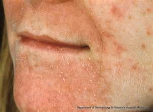 acne around mouth area picture 2