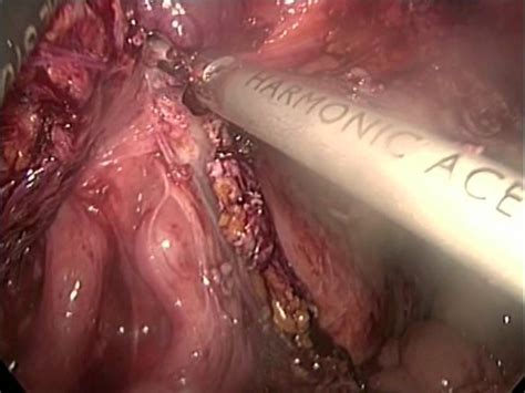 abscess on colon picture 5
