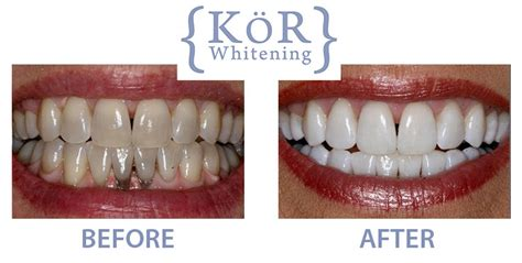 teeth bleaching oakland picture 15