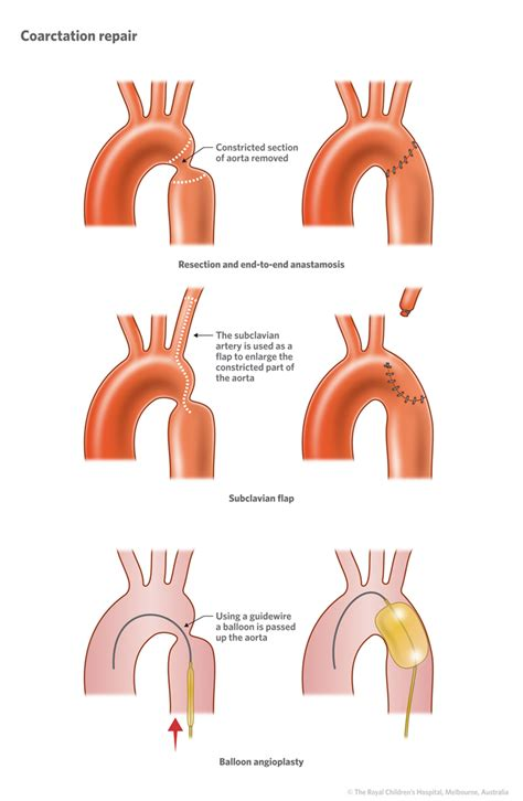 Symptoms low blood pressure picture 10