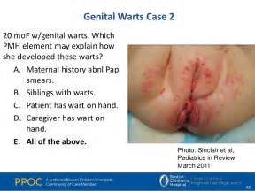 hpv genital warts treatment reviews picture 2