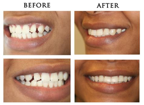 fixing gap in teeth picture 9