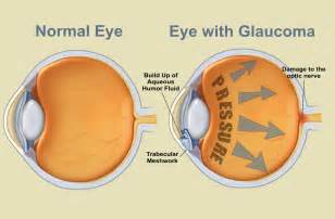 eye sight blood pressure picture 6
