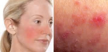 irritated skin picture 5