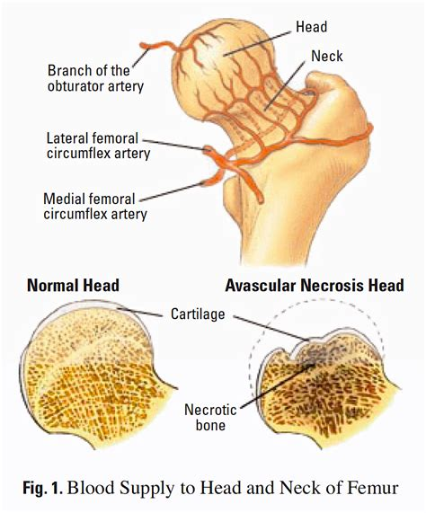 effects of bone fracture on circulation picture 3