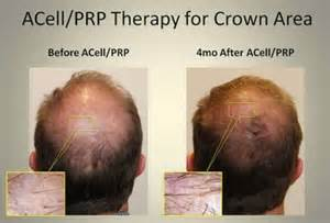 stem cell hair regrowth 2014 picture 17