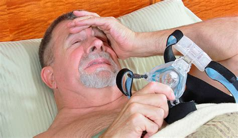 cpap and skin complexion picture 14