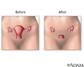 women's libido enhancers after hysterectomy picture 9