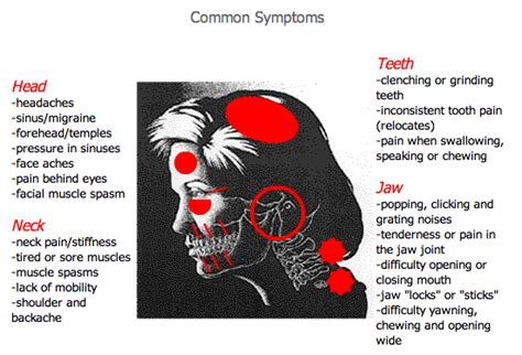 can teeth cause neck pain picture 5