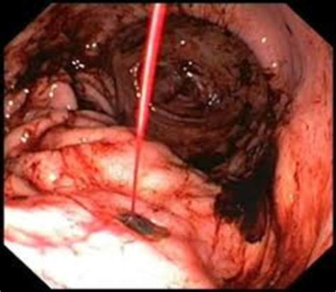 bleeding in the gastrointestinal tract treatment picture 9