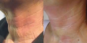 skin creams for deep creases picture 2