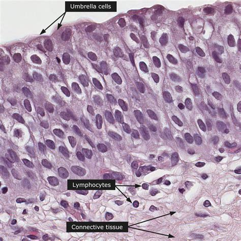 bladder cell picture 1