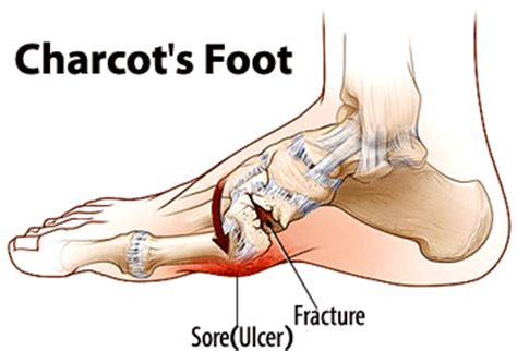 charcot's joint information picture 1