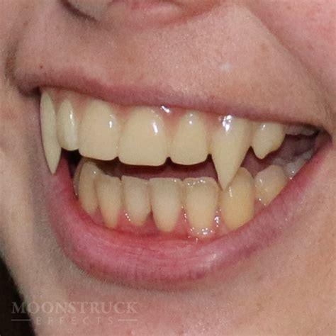 custom teeth picture 9