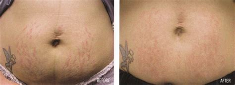 fraxel stretch marks pictures picture 9