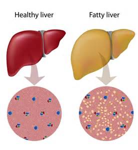 fatty liver causes picture 2