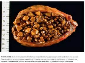 carpon for bladder stones picture 14