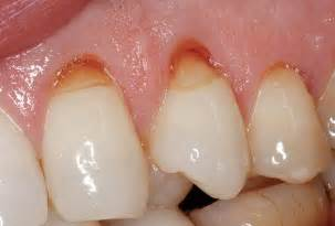 cavity cover for teeth picture 3