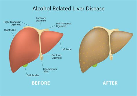 alcoholic liver disease picture 9