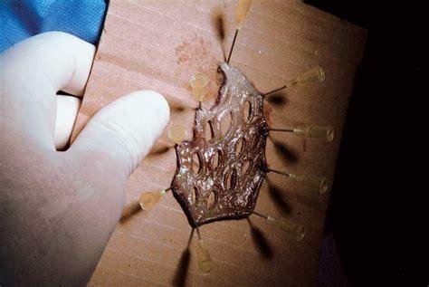 animal skin graft. picture 14